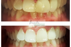 Tooth Whitening & Veneer