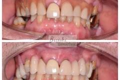 Denture case (1)